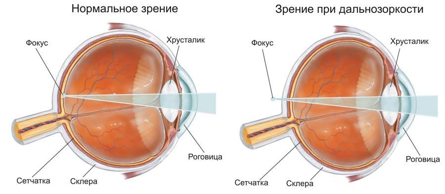 Очки с дырочками для улучшения зрения как носить
