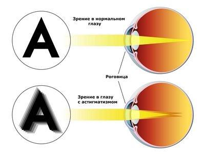 Миопический астигматизм обоих глаз код по мкб